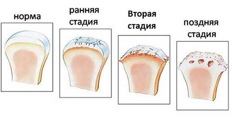 Артроз тазобедренного сустава - «Московский Доктор»