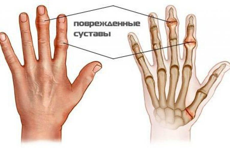 Артрит пальцев рук как лечить в домашних условиях
